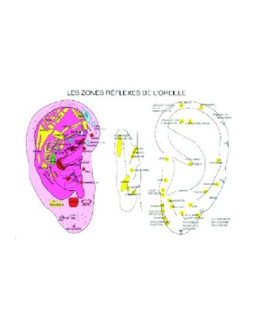 Les zones réflexes de l'oreille (Planche A2)