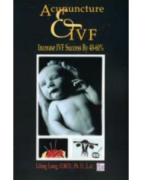 Acupuncture - IVF